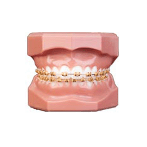 Gold-Plated Braces | Gold'n Braces, Inc